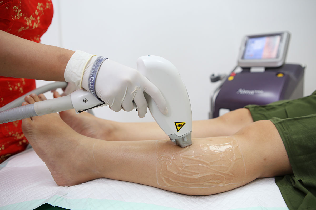 Laser Hair Removal Rejuvie Clinic